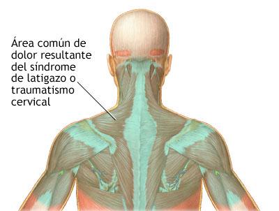 El tratamiento de la columna vertebral quien el médico