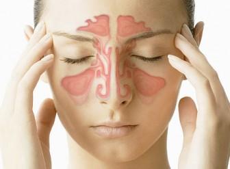dolor de cabeza por sinusitis