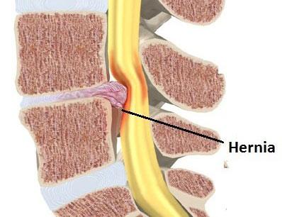 La neuralgia y la osteocondrosis