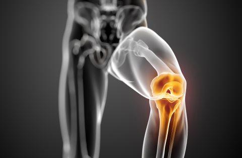 dolor de rodilla ilustración