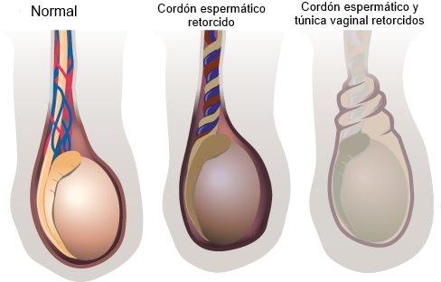 dolor de testiculos por cordón torcido