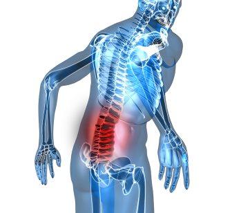dolor lumbar esquema
