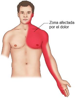 causas del dolor de brazo izquierdo