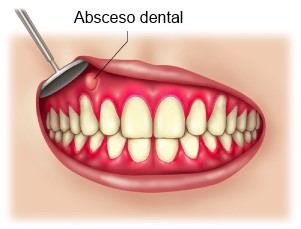 causas del dolo  de dientes