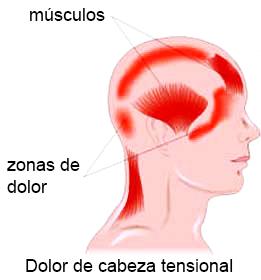 dolor lado derecho cabeza cuello