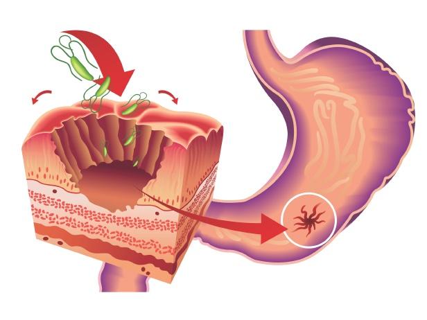 Gases en el estomago causas