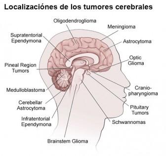Dolor de cabeza sinusal dolor en el lado izquierdo