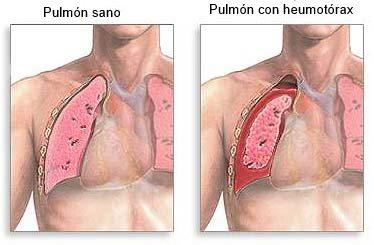Dolor de pulmones al respirar